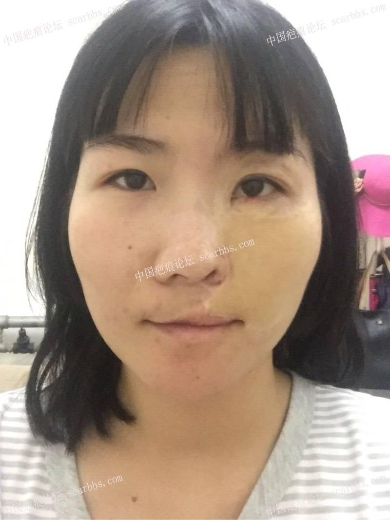 30年了,脸部烫伤,脸部做的值皮,疤痕针脚很明显,鼻翼有缺损57-疤痕体质图片_疤痕疙瘩图片-中国疤痕论坛