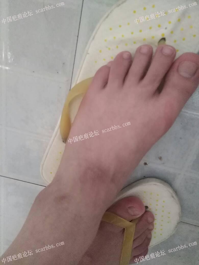 腿摔伤留下的色素疤痕很严重,怎么办啊?23-疤痕体质图片_疤痕疙瘩图片-中国疤痕论坛