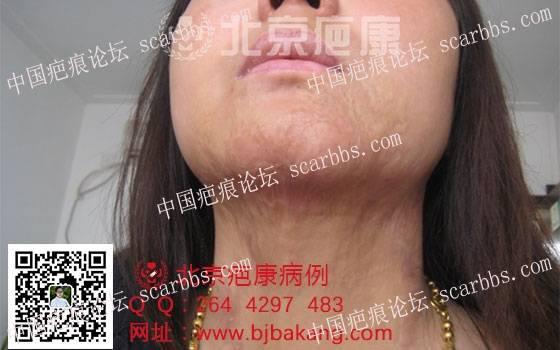 黄女士烧伤疤痕增生治疗案例分享72-疤痕体质图片_疤痕疙瘩图片-中国疤痕论坛