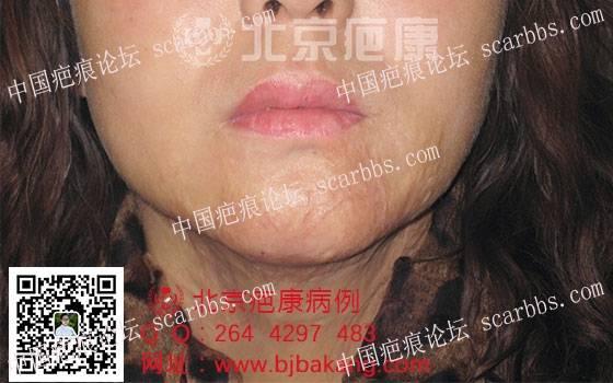 黄女士烧伤疤痕增生治疗案例分享65-疤痕体质图片_疤痕疙瘩图片-中国疤痕论坛