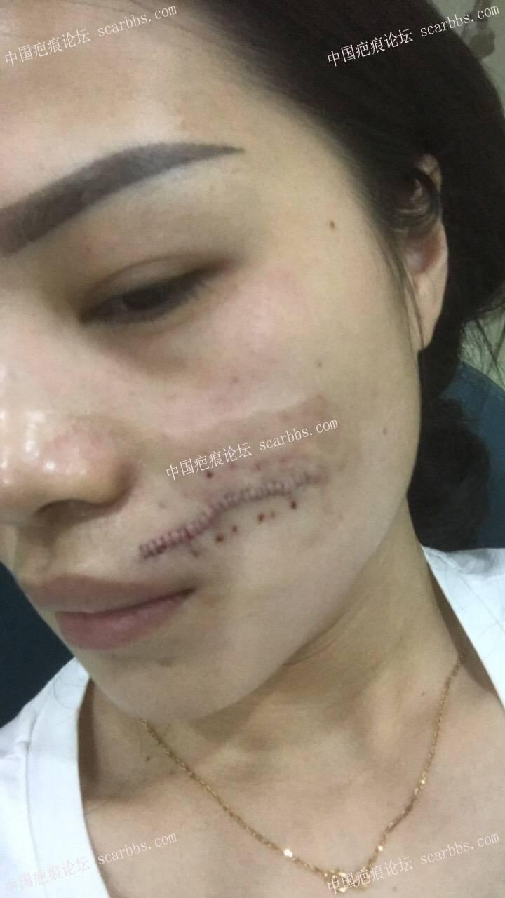 面部疤痕一年多,5.15手术修复治疗疤痕。14-疤痕体质图片_疤痕疙瘩图片-中国疤痕论坛