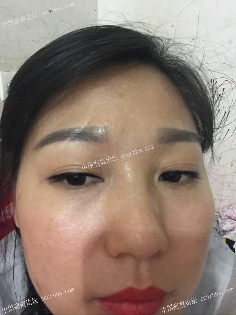 眉部的凹陷疤痕,应该怎么修复效果好?54-疤痕体质图片_疤痕疙瘩图片-中国疤痕论坛