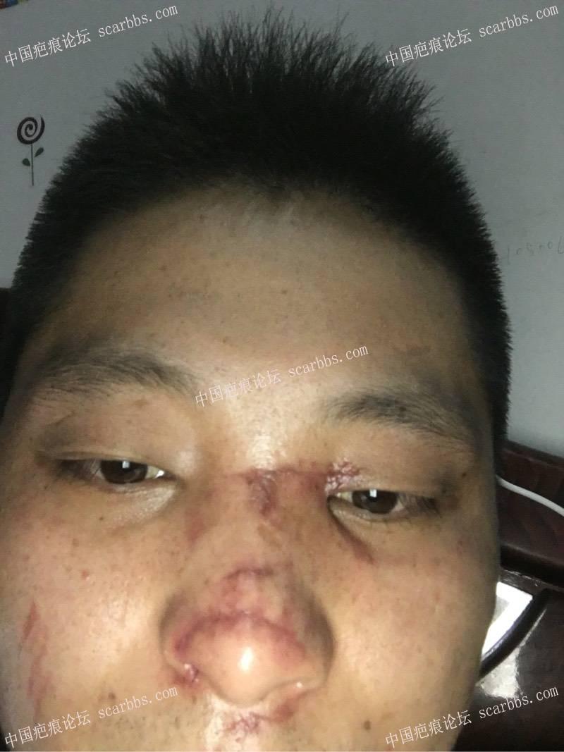 面部疤痕,请问怎样治疗?11-疤痕体质图片_疤痕疙瘩图片-中国疤痕论坛
