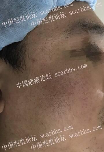 告别曾经的我———天津时光医院痘坑治疗成果分享13-疤痕体质图片_疤痕疙瘩图片-中国疤痕论坛