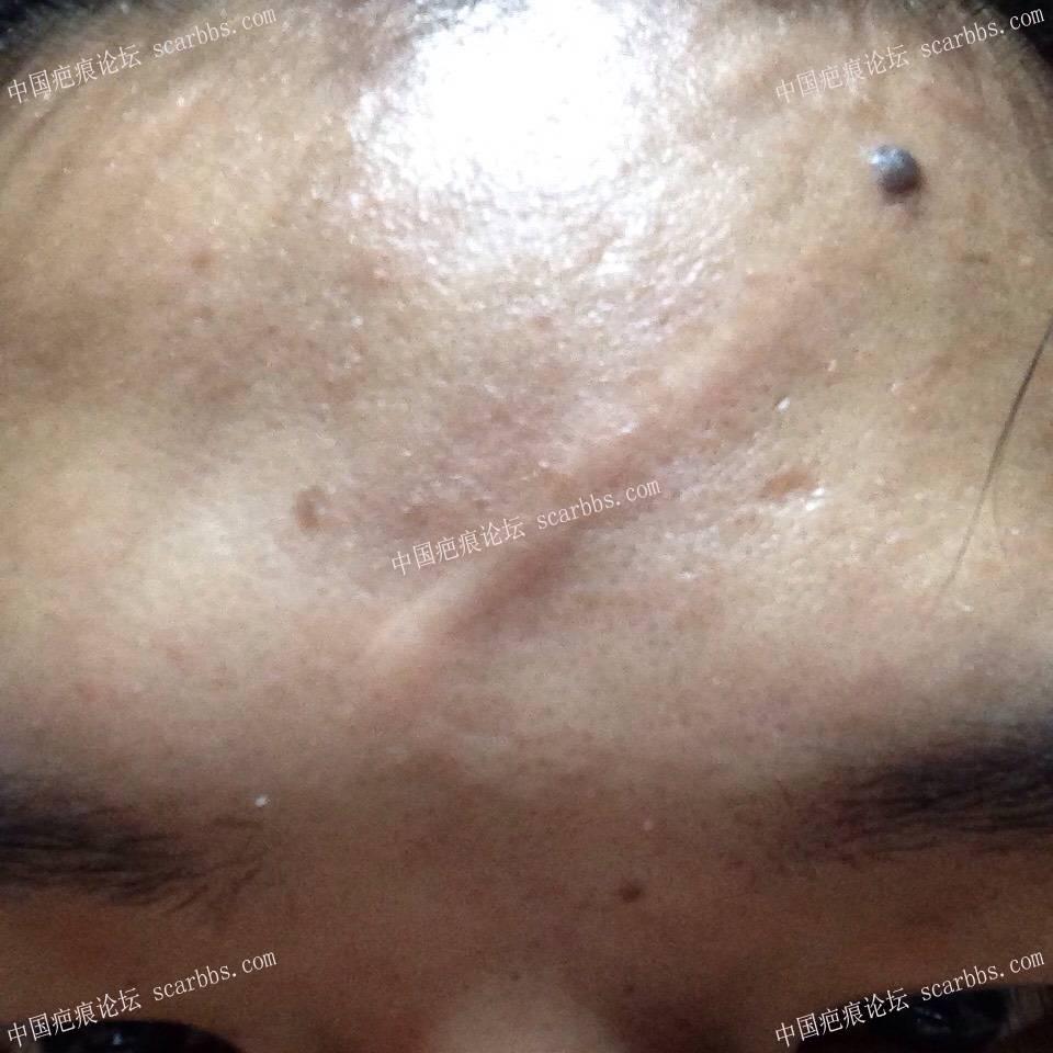 额头二十年左右的凸起疤痕切除缝合交流(记