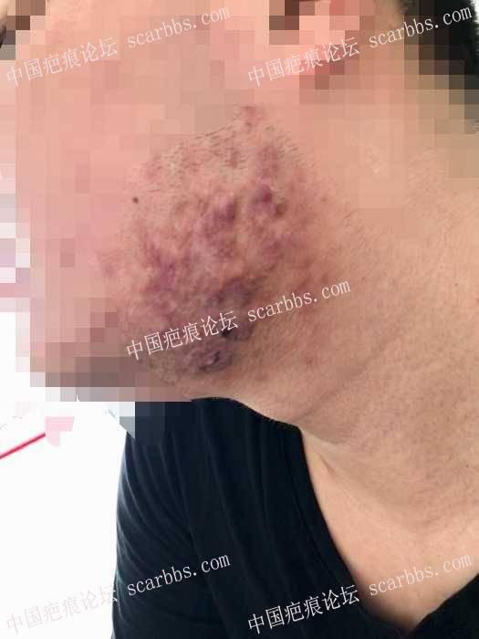 腮部疤痕疙瘩第四次治疗情况反馈!!76-疤痕体质图片_疤痕疙瘩图片-中国疤痕论坛