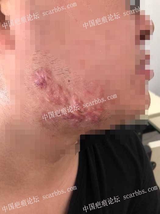 腮部疤痕疙瘩第四次治疗情况反馈!!10-疤痕体质图片_疤痕疙瘩图片-中国疤痕论坛