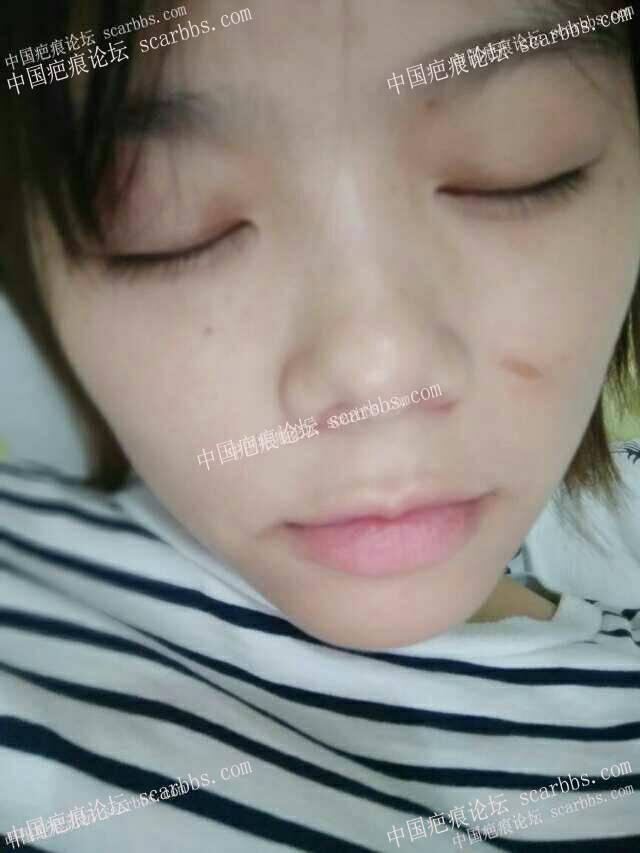 面部凹陷疤痕手术修复,抗疤成功,开心(∩_∩)13-疤痕体质图片_疤痕疙瘩图片-中国疤痕论坛