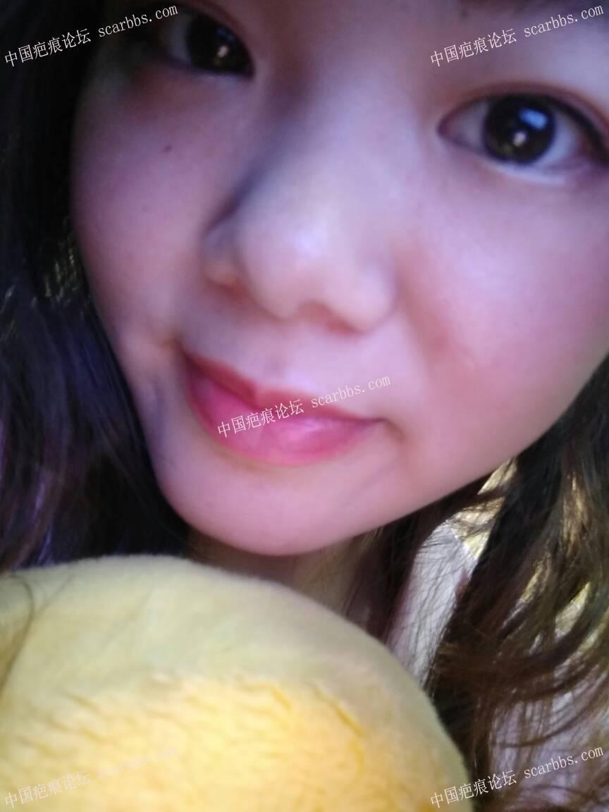 面部凹陷疤痕手术修复,抗疤成功,开心(∩_∩)66-疤痕体质图片_疤痕疙瘩图片-中国疤痕论坛