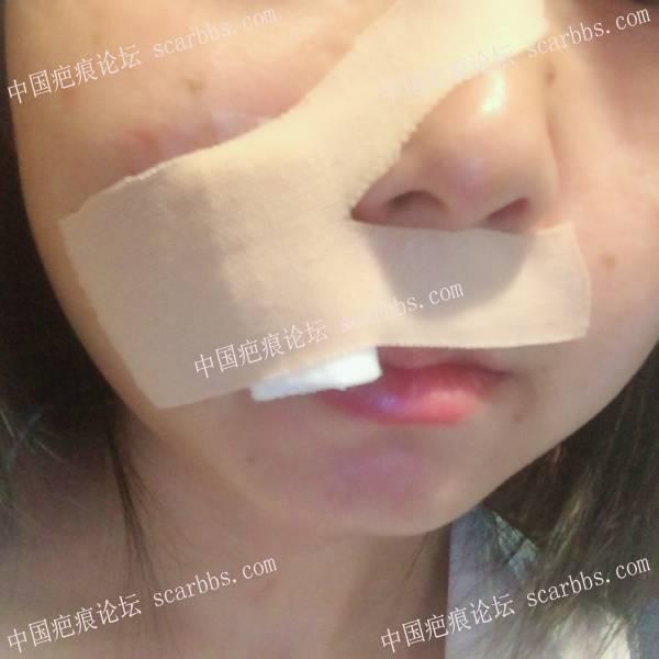 5月22日面部凹陷疤痕手术切缝-重庆好美杨东运教授77-疤痕体质图片_疤痕疙瘩图片-中国疤痕论坛
