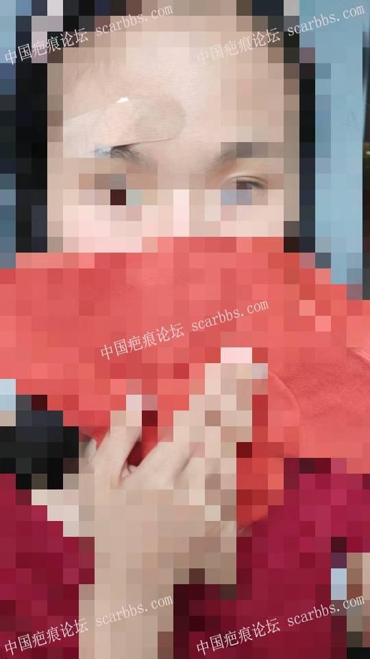 记录6.4眉毛上方凹陷疤痕切除64-疤痕体质图片_疤痕疙瘩图片-中国疤痕论坛