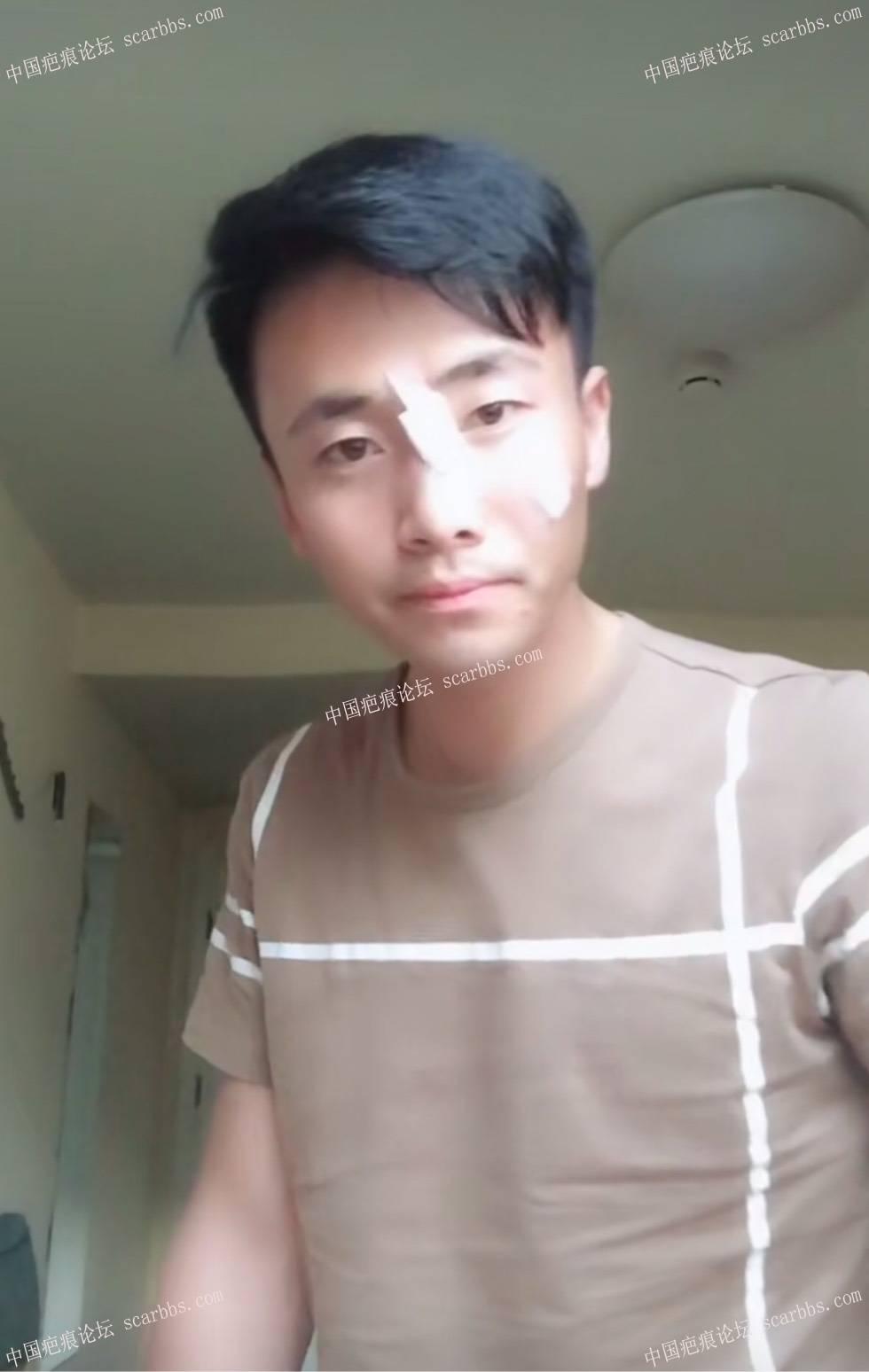 5.29面部凹陷疤痕切除了64-疤痕体质图片_疤痕疙瘩图片-中国疤痕论坛