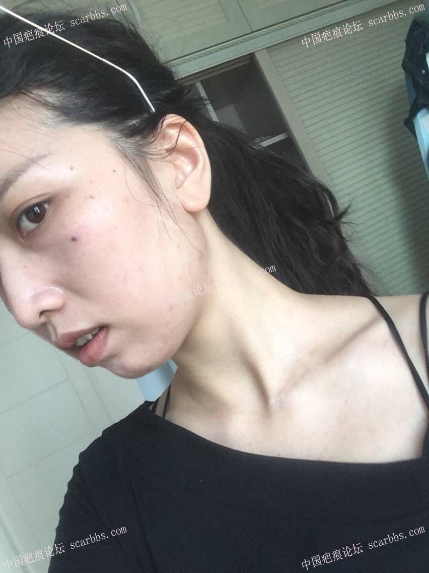 面部白色线状疤痕,术后一年 面部白色疤痕,手术切除