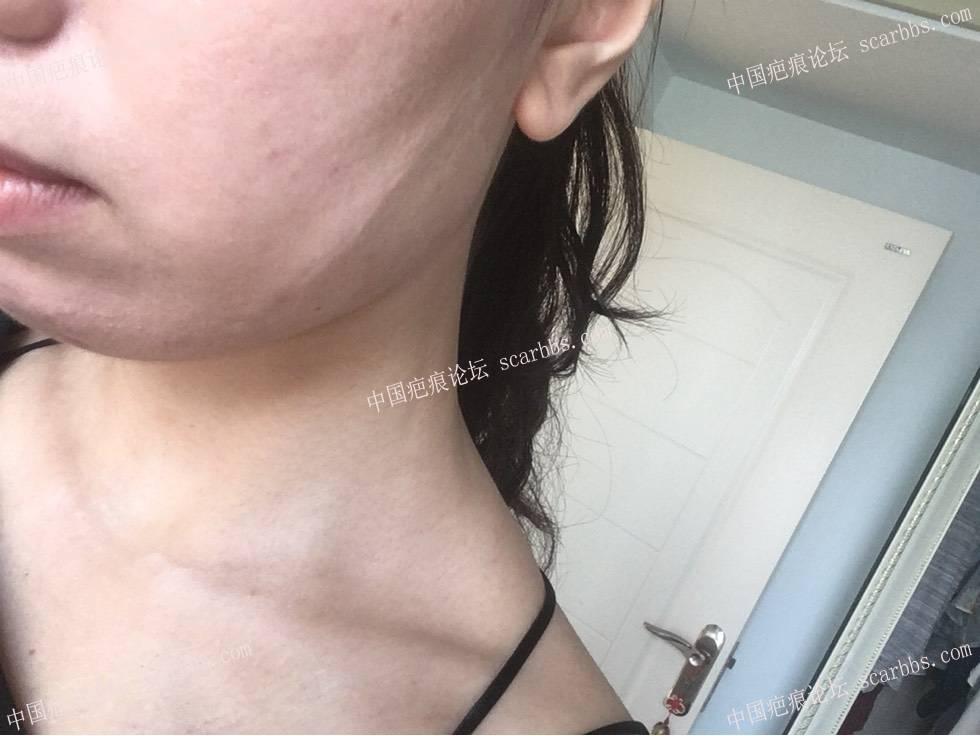 面部白色线状疤痕,术后一年 面部白色疤痕,手术切除,