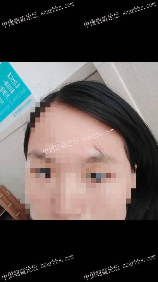 记录6.4眉毛上方凹陷疤痕切除27-疤痕体质图片_疤痕疙瘩图片-中国疤痕论坛