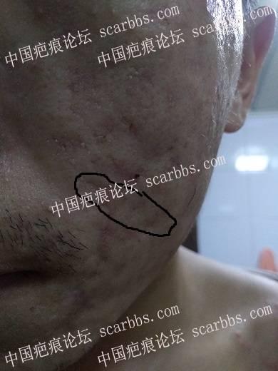 痘坑切除全程直播4月22日起,每天一更73-疤痕体质图片_疤痕疙瘩图片-中国疤痕论坛