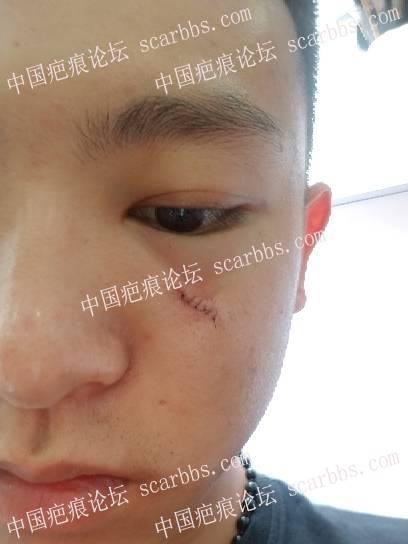 面部痘坑疤痕在天津时光整形切除了