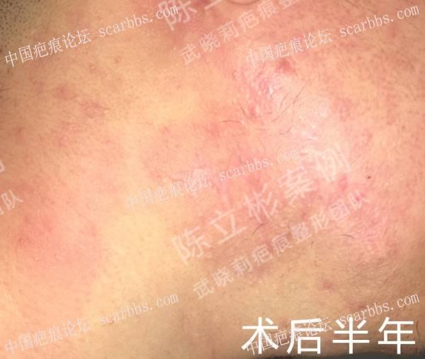 双下颌疤痕疙瘩术后半年复诊 双下颌疤痕疙瘩,术后放疗,