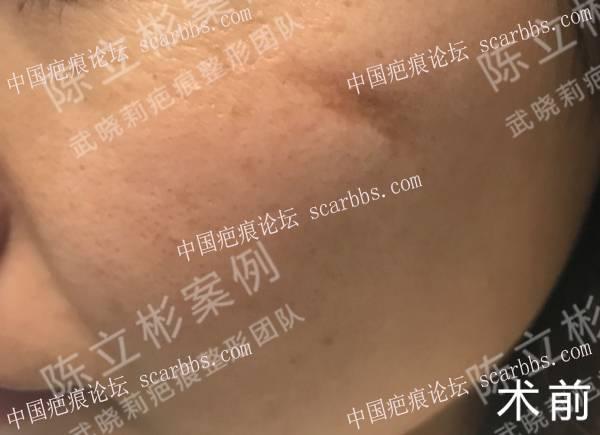面部凹陷性疤痕术后一年复诊记录