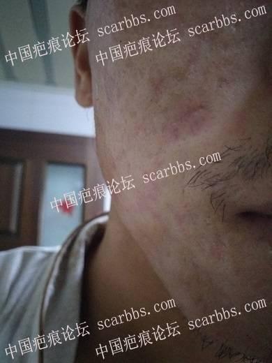 痘坑切除全程直播4月22日起,每天一更22-疤痕体质图片_疤痕疙瘩图片-中国疤痕论坛