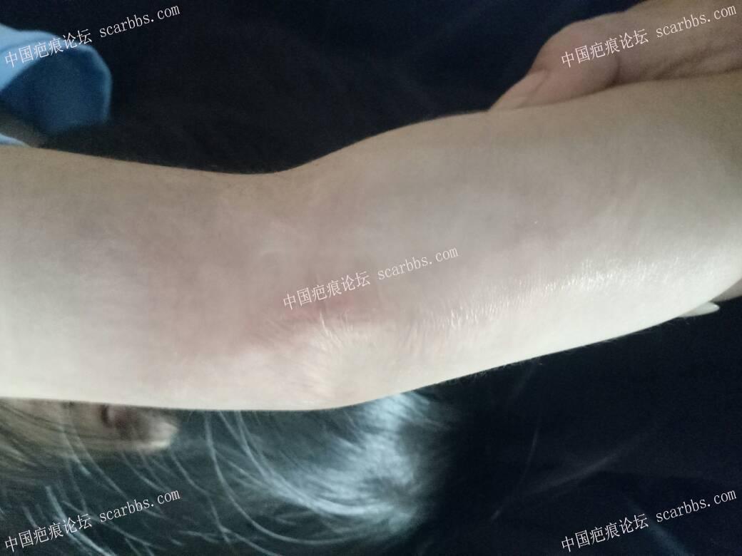 宝宝手臂烫伤,抗疤一年多48-疤痕体质图片_疤痕疙瘩图片-中国疤痕论坛