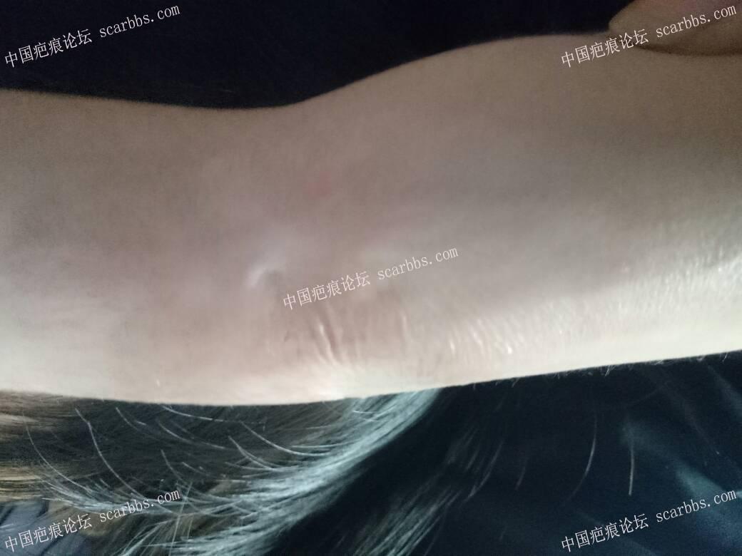 宝宝手臂烫伤,抗疤一年多40-疤痕体质图片_疤痕疙瘩图片-中国疤痕论坛