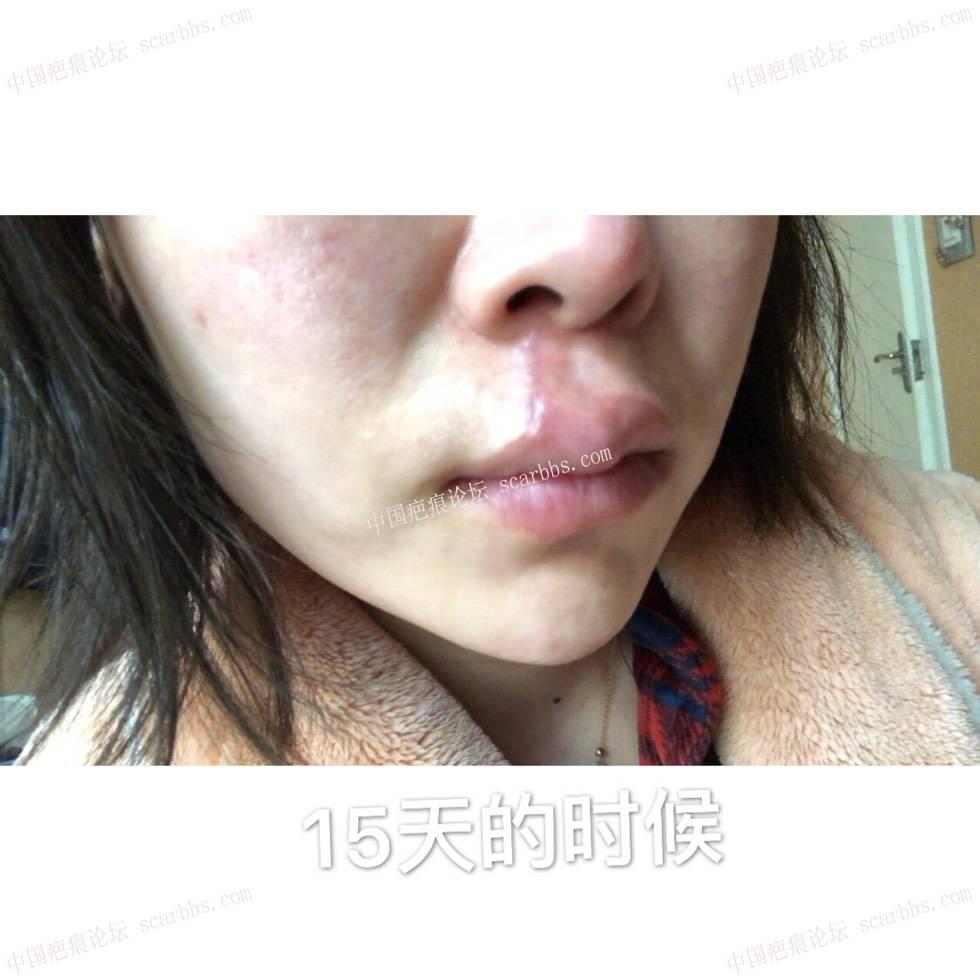 人中凹陷疤痕手术切除修复