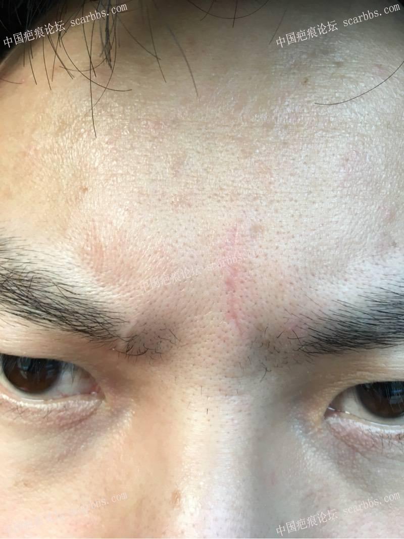 切除额头凹陷疤痕前后对比图65-疤痕体质图片_疤痕疙瘩图片-中国疤痕论坛