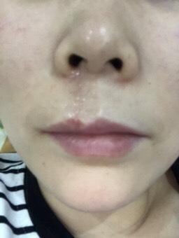 嘴唇凹陷老疤痕,手术修复三个月