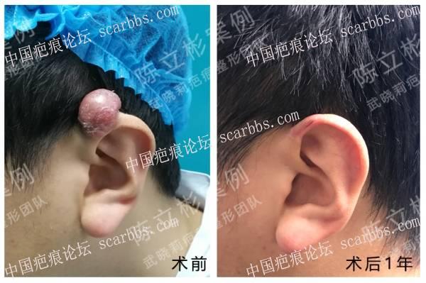 耳部疤痕疙瘩术后1年复诊记录