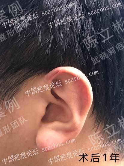 耳部疤痕疙瘩术后1年复诊记录95-疤痕体质图片_疤痕疙瘩图片-中国疤痕论坛