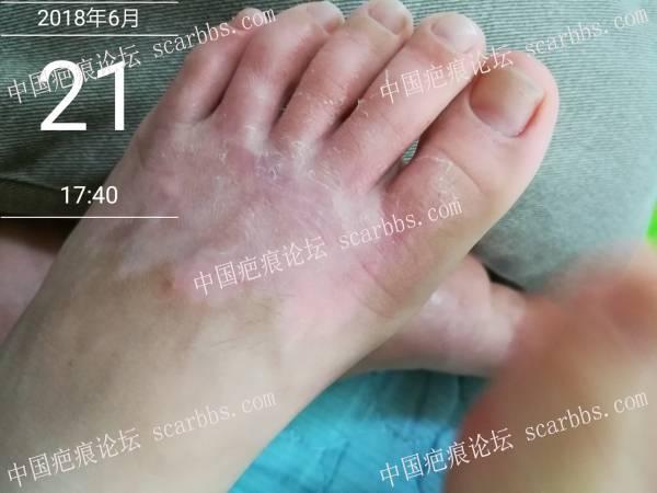 2018.5.8 烫伤10%的记录帖34-疤痕体质图片_疤痕疙瘩图片-中国疤痕论坛