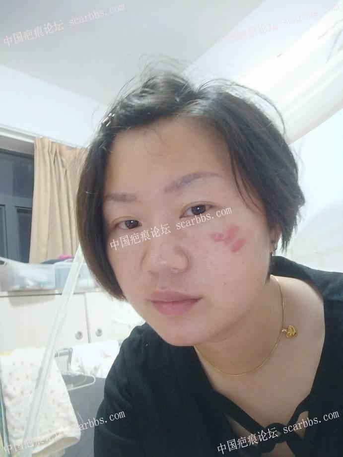 面部点痣留下的增生性疤痕