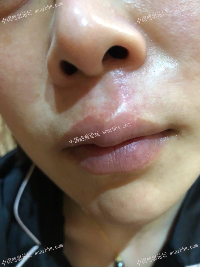 人中凹陷疤痕手术切除修复 人中凹陷疤痕,手术切除,上海九院