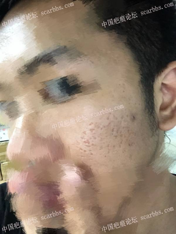 痘坑切缝6.12手术/6.19拆线 痘坑疤痕,手术切缝,姚庆君教授