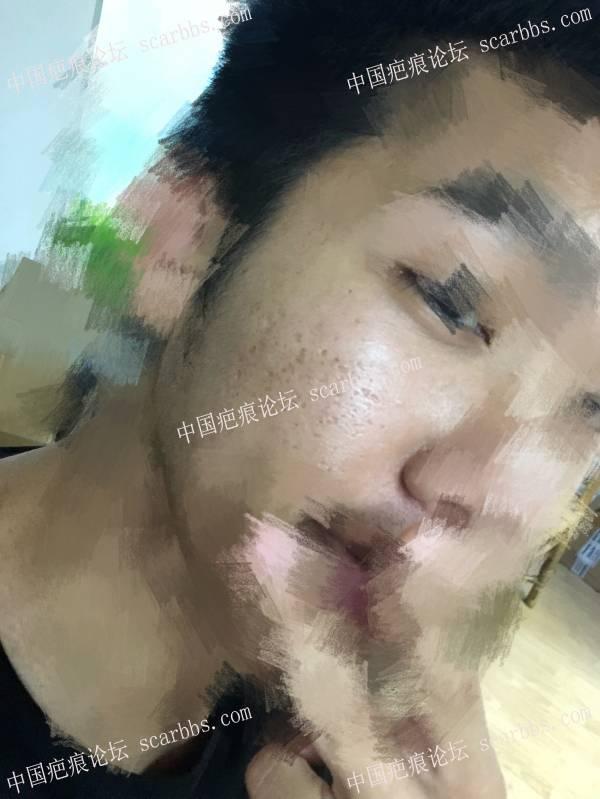 痘坑切缝6.12手术/6.19拆线81-疤痕体质图片_疤痕疙瘩图片-中国疤痕论坛
