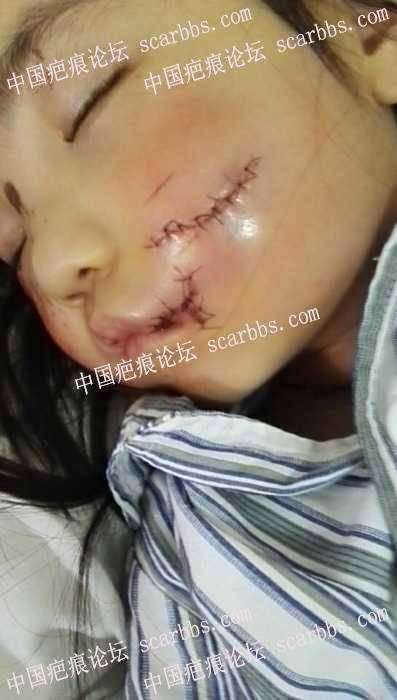 面部缝针疤痕护理三个月