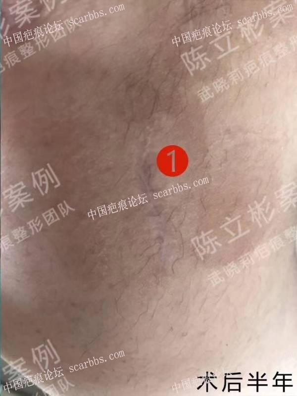 大腿疤痕疙瘩术后半年复诊记录58-疤痕体质图片_疤痕疙瘩图片-中国疤痕论坛
