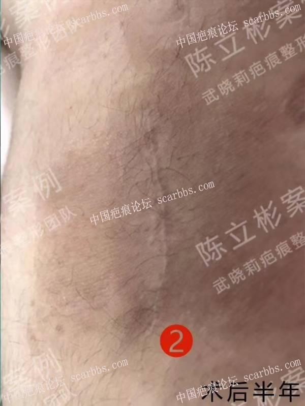 大腿疤痕疙瘩术后半年复诊记录6-疤痕体质图片_疤痕疙瘩图片-中国疤痕论坛