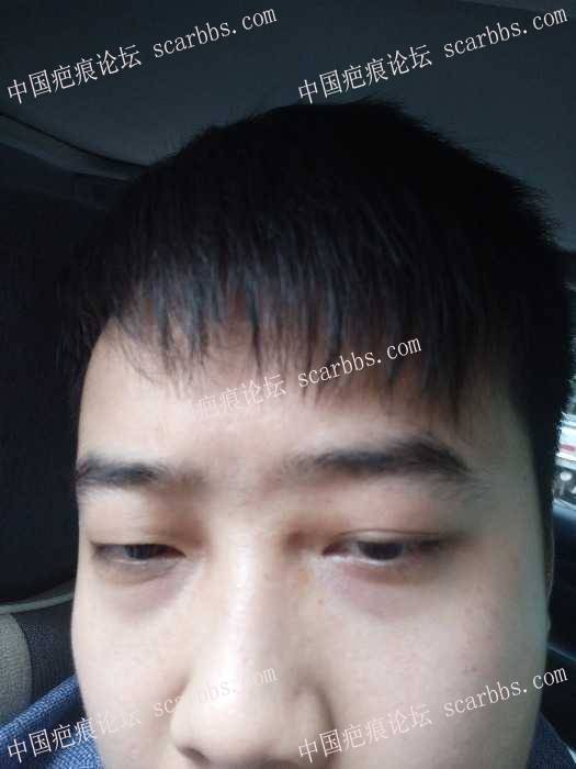面部点痣留下的凹陷疤痕1-疤痕体质图片_疤痕疙瘩图片-中国疤痕论坛