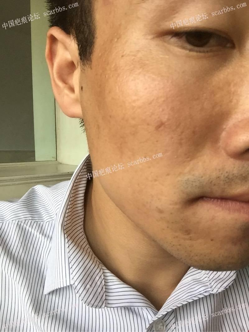 5.29面部凹陷疤痕切除了30-疤痕体质图片_疤痕疙瘩图片-中国疤痕论坛