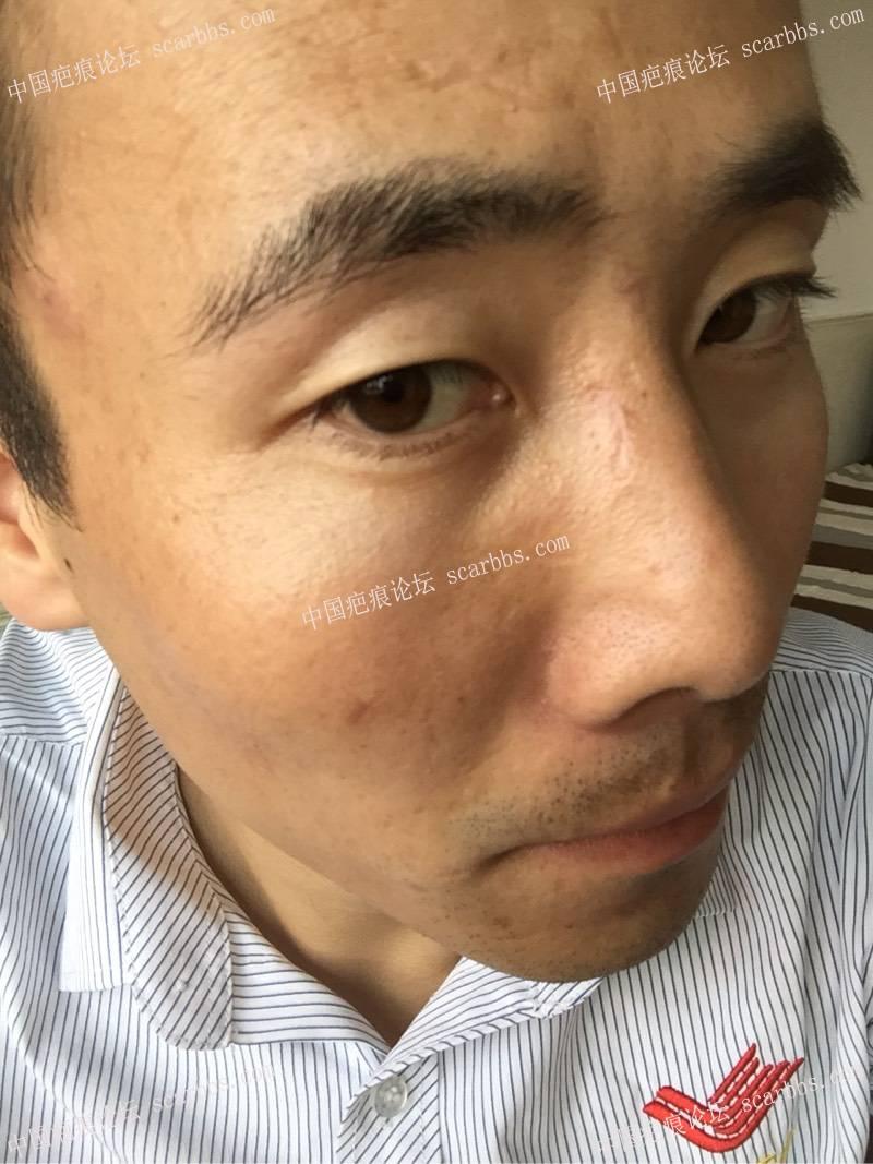 5.29面部凹陷疤痕切除了61-疤痕体质图片_疤痕疙瘩图片-中国疤痕论坛