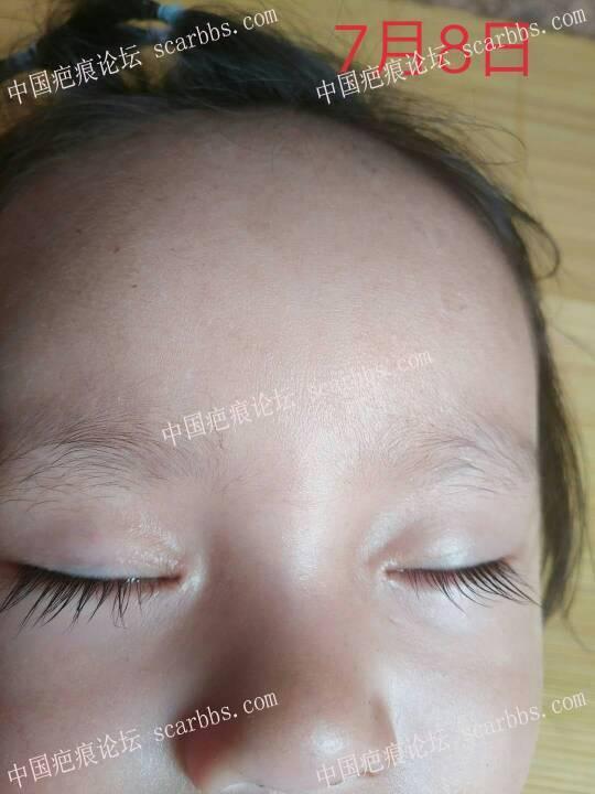 2018年2月8日下午宝宝鼻梁磕伤 开始了漫漫的抗疤之路81-疤痕体质图片_疤痕疙瘩图片-中国疤痕论坛