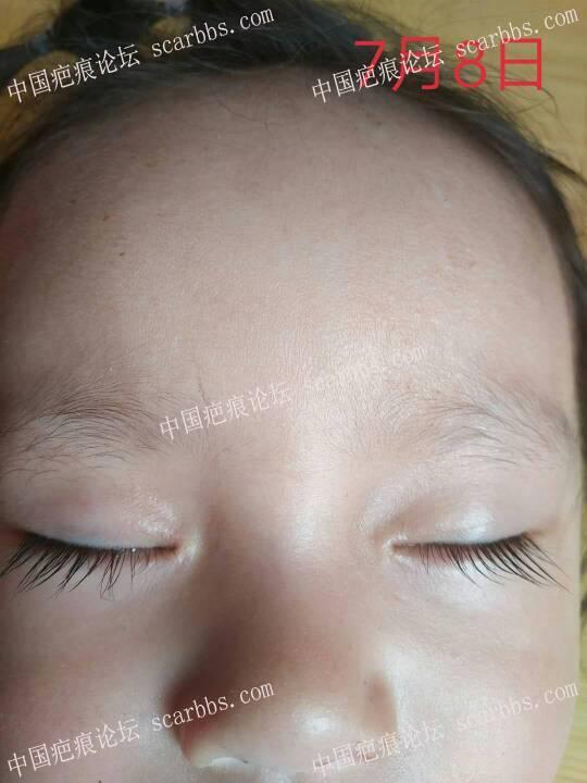2018年2月8日下午宝宝鼻梁磕伤 开始了漫漫的抗疤之路96-疤痕体质图片_疤痕疙瘩图片-中国疤痕论坛