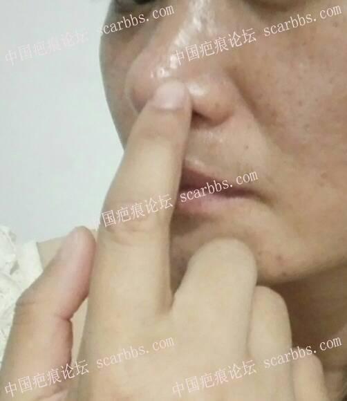 鼻部凸起疤痕寻求帮助56-疤痕体质图片_疤痕疙瘩图片-中国疤痕论坛