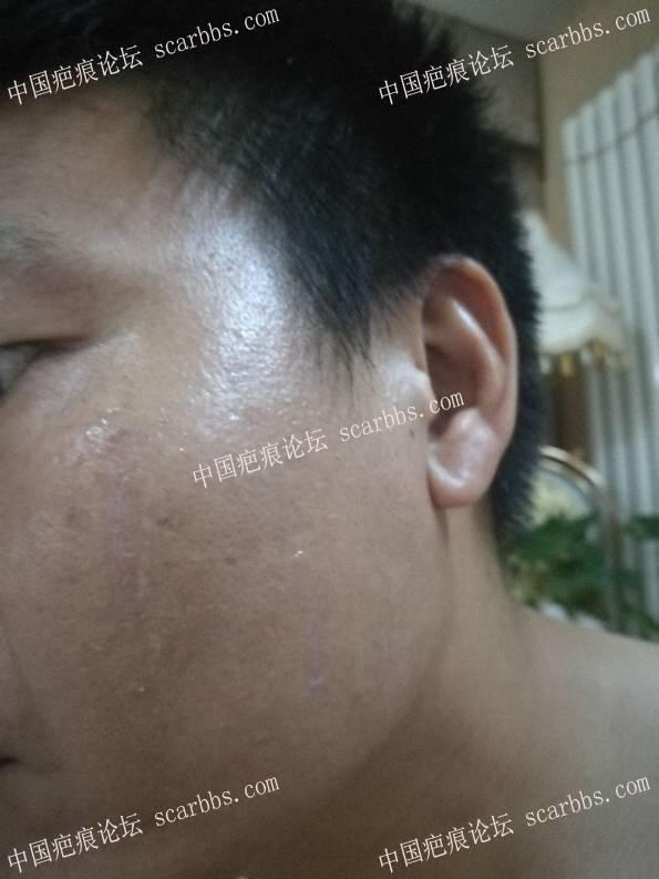 脸部抓伤,炎性色沉8-疤痕体质图片_疤痕疙瘩图片-中国疤痕论坛