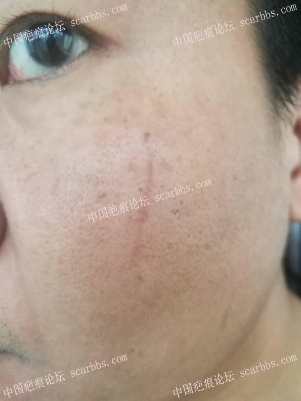脸部抓伤,炎性色沉46-疤痕体质图片_疤痕疙瘩图片-中国疤痕论坛