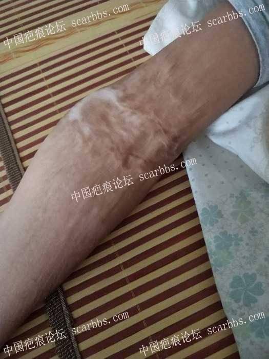手肘十年的烫伤疤痕99-疤痕体质图片_疤痕疙瘩图片-中国疤痕论坛