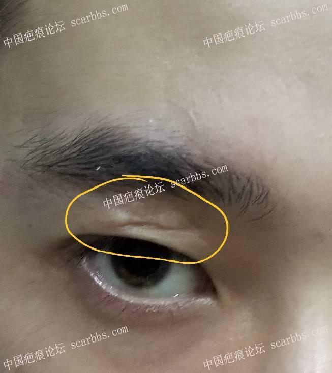 眼皮凹陷疤痕,怎么治疗比较好98-疤痕体质图片_疤痕疙瘩图片-中国疤痕论坛