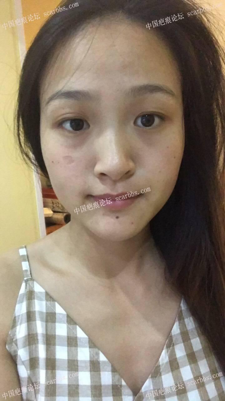 面部点痣留下的凹陷疤痕43-疤痕体质图片_疤痕疙瘩图片-中国疤痕论坛
